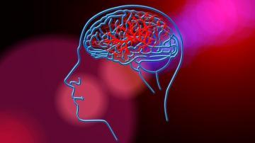 cervello ictus
