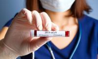 test sierologici misercordia